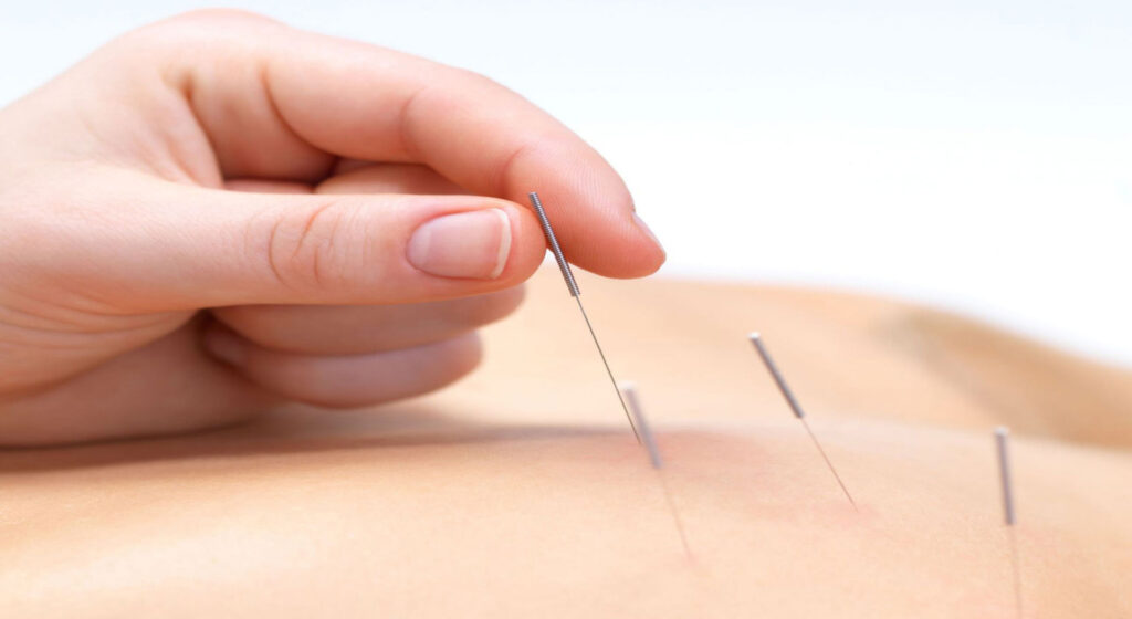 Acupuncture-back-image